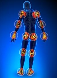 Anti-Inflammatory Properties in NAD